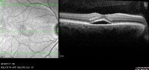צילום OCT ממרפאת רשתית של דר רכטמן