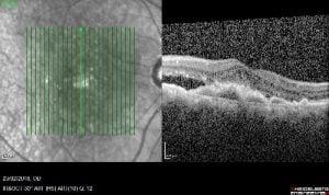 בדיקת OCT המראה WET AMD פעיל